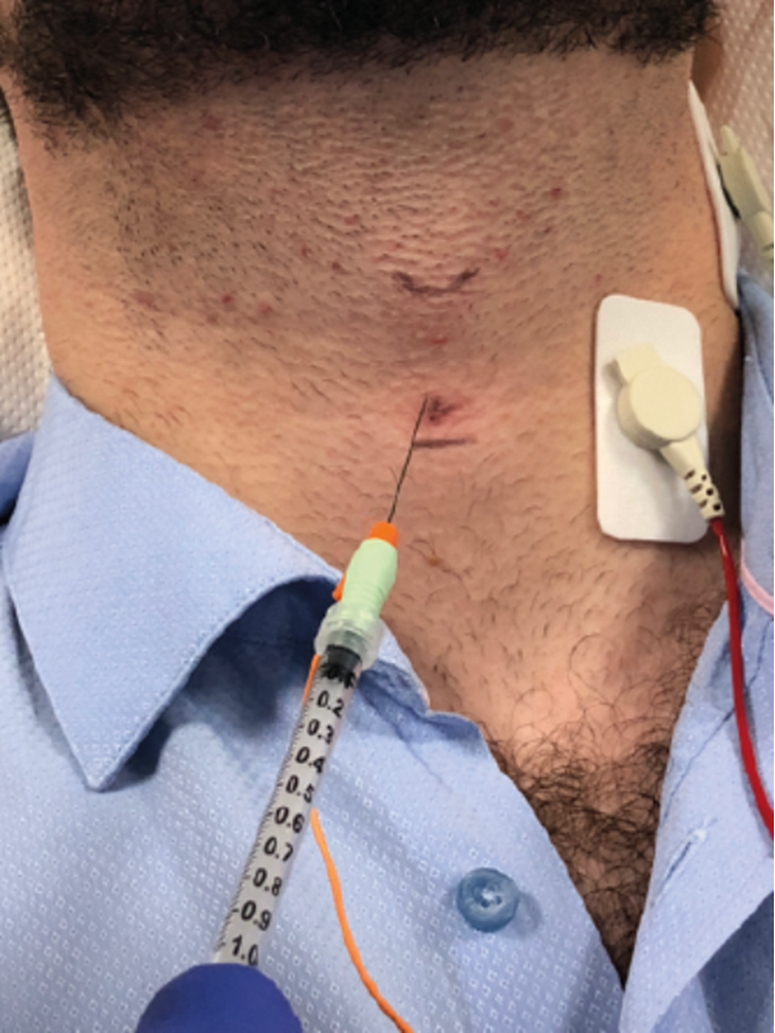 Botulinum toxin injection in spasmodic dysphonia | ENT & Audiology News
