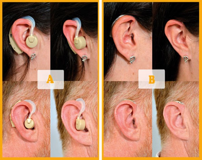 An example of a direct-to-consumer device  (left panel) and NHS hearing aid (right panel) modelled by male and  female wearers.