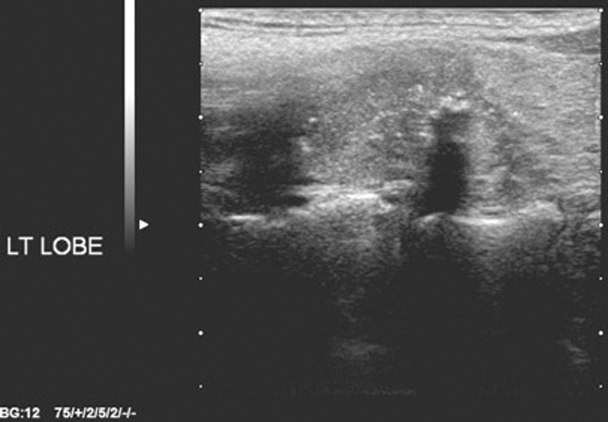 Thyroid Nodules Time For A Rational Imaging Approach Ent