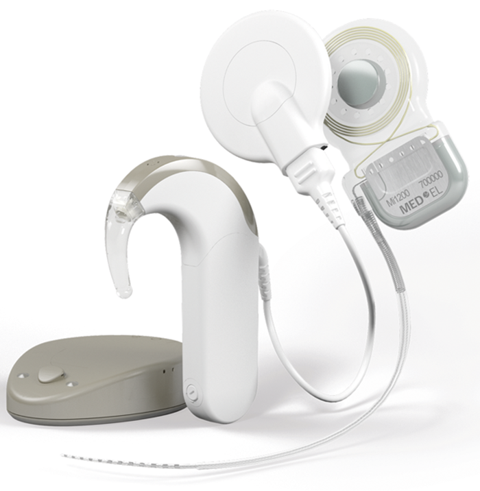 Rehabilitation Of Single Sided Deafness With Cochlear