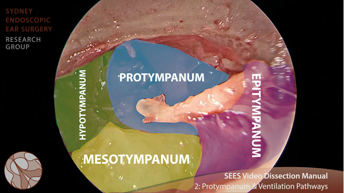 Video otology tutorials: how EES changes the game   ENT & Audiology News