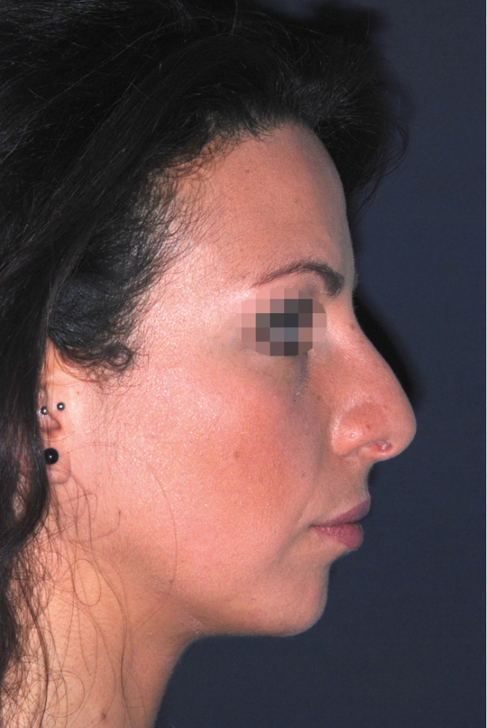 The future of facial plastics and rhinoplasty | ENT