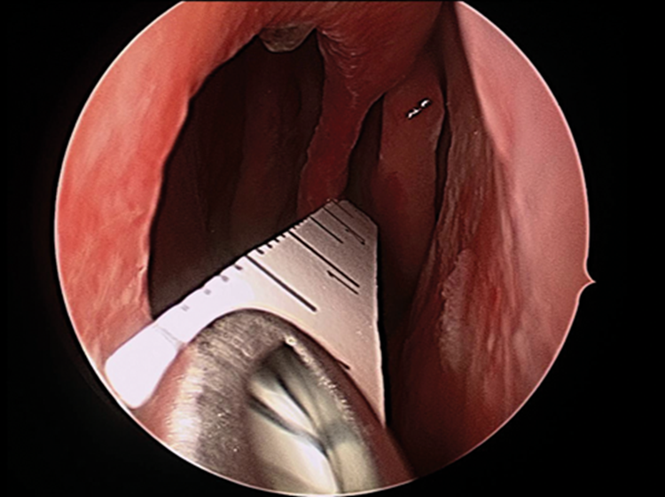 Nasal Septal Perforation Repair Ent Audiology News